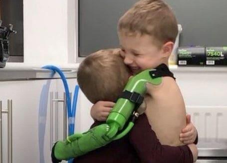 Un adolescente de Inglaterra ha obtenido un brazo robótico ortopédico